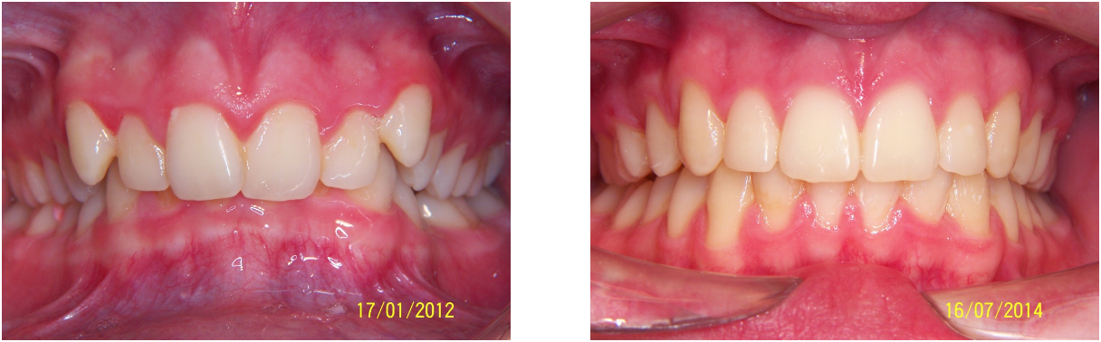 an image showing a set of teeth before and after the dental treatment