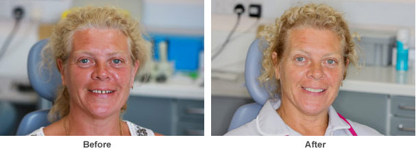 two pictures on one image showing one of our female patients smiling before and after dental treatment was carried out on their set of teeth by Dr Panchal
