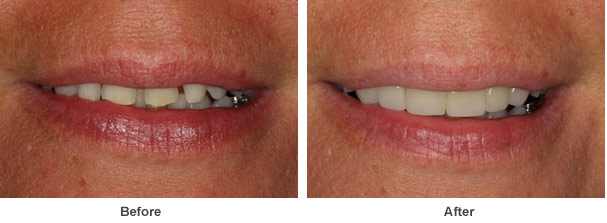 a close up image showing two pictures a patient's gums and teeth before and after dental work was carried out