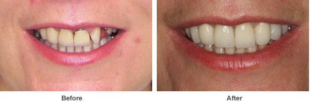 a close up image showing two pictures before and after dental work was carried out