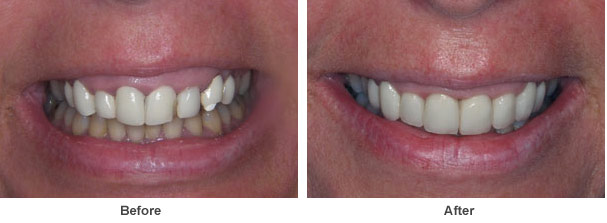 a close up image of a patients set of teeth showing two images before and after dental treatment was carried out to repair her teeth