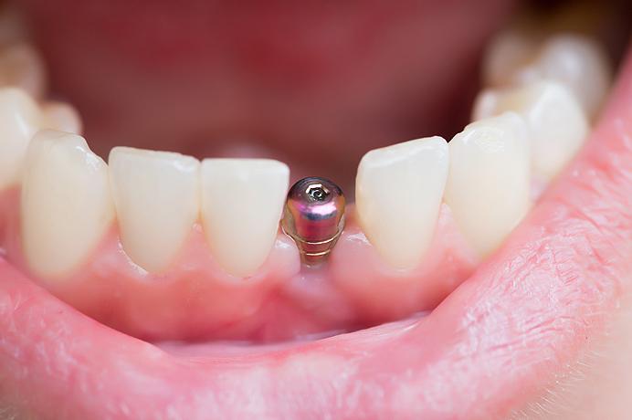 implant information