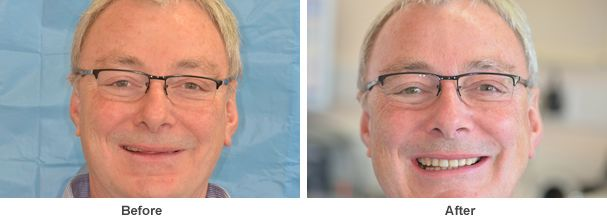 an image showing two pictures of one of our happy patients smiling before and after the dental treatment was carried out