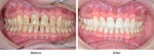 a close up image showing two pictures ofteeth and gums before and after the dental treatment was completed